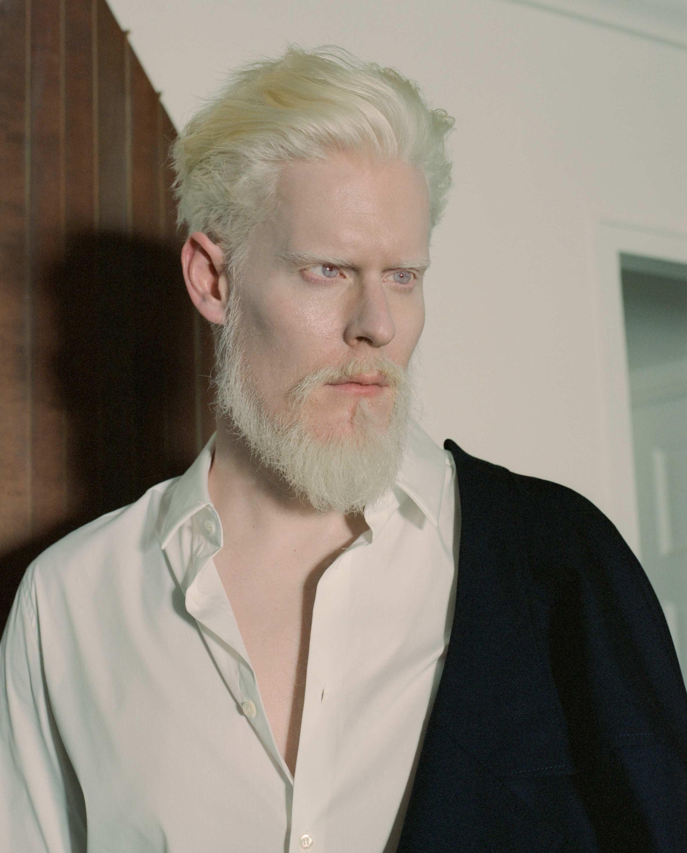 Rencontre Avec Le Mannequin Albinos Stephen Thompson