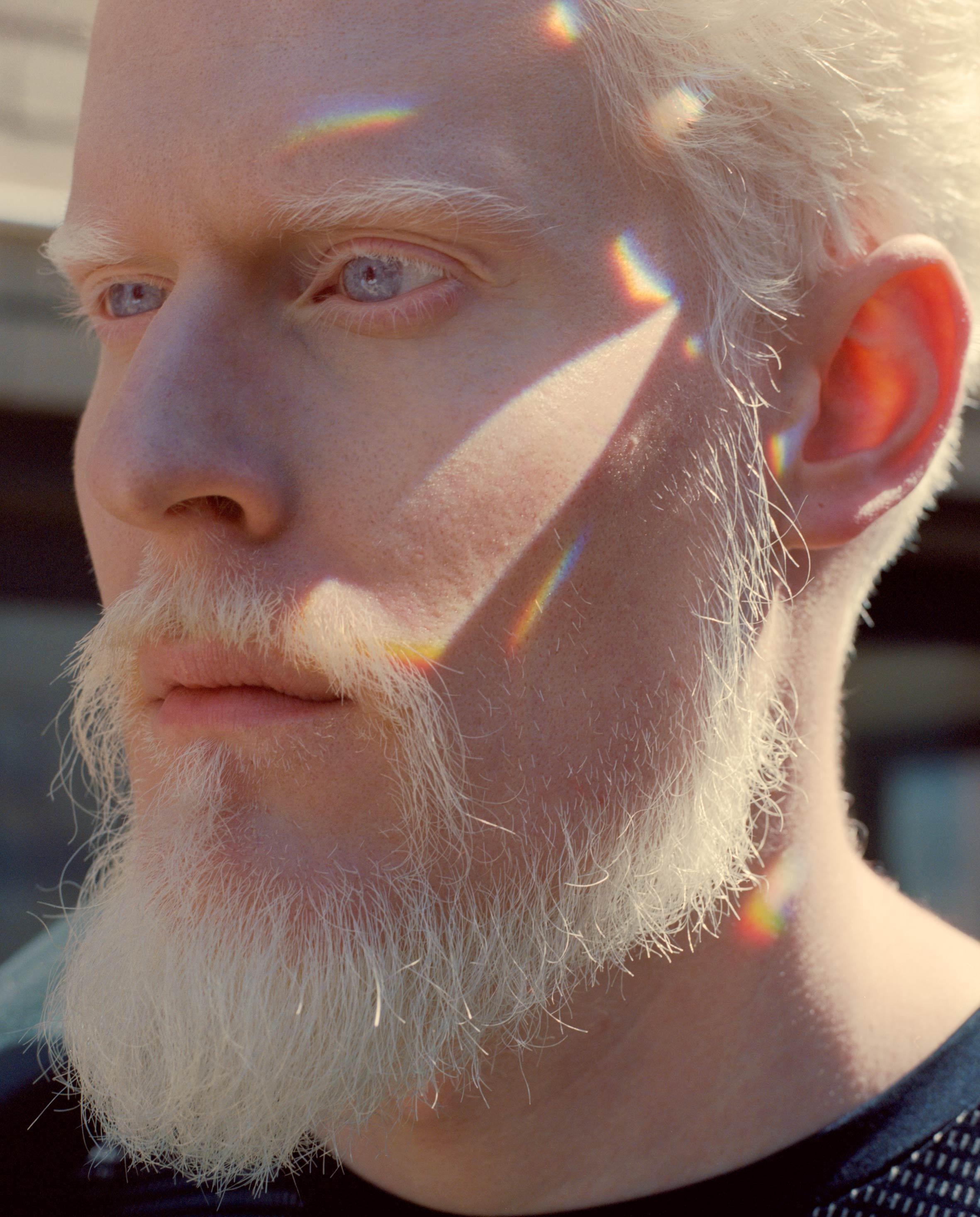 Shaun Ross chez Alexander Mcqueen, Ralph Souffrant chez Yeezy, le culte de la différence et de la singularité semble peu à peu s'immiscer dans l'univers des créateurs. Parmi ceux qui ont permis une telle avancée, on compte Stephen Thompson, atteint d'albinisme et mannequin depuis les années 90. Féru d'art, jazzman accompli, égérie Givenchy, son physique hors norme lui vaut un parcours hors norme. Rencontre.